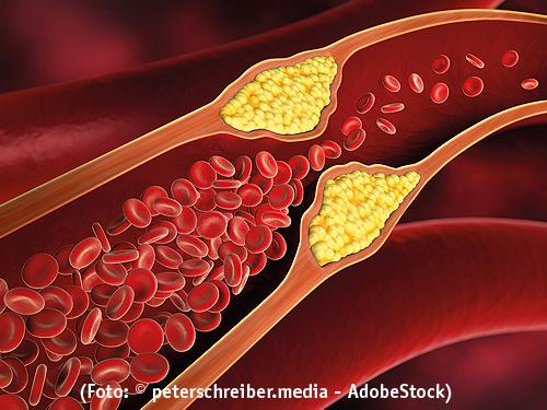 Arterioslaerose, Gefäßverengung