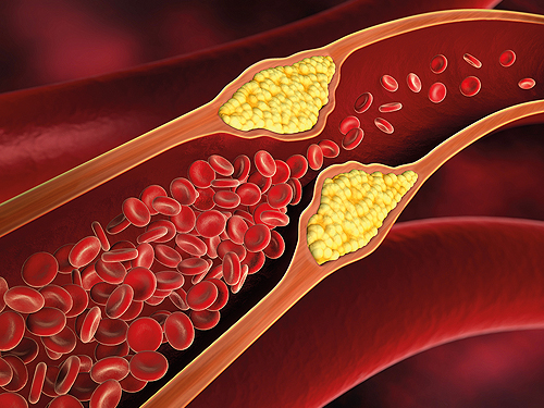 Arteriosklerose, Gefäßverengung